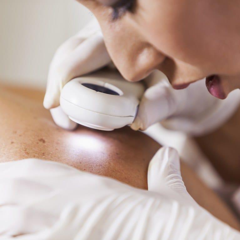 Hyperpigmentation-Treatments-Dermatologist