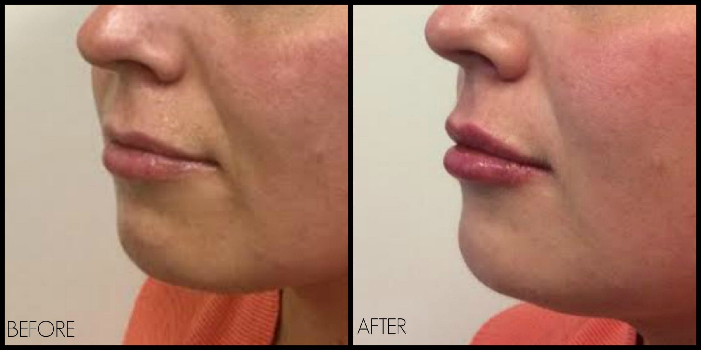What to expect when getting lip fillers | REN Dermatology ...
