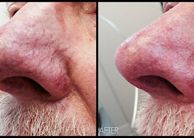 Improvement of dilated capillaries on nose and cheek with Quanta Laser
