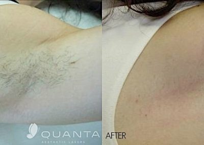 Laser Hair Removal of the axillae