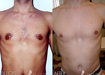 Laser Hair Removal of the chest