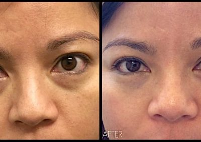 Improvement of hollowing and circles under the eyes, using Restylane Filler