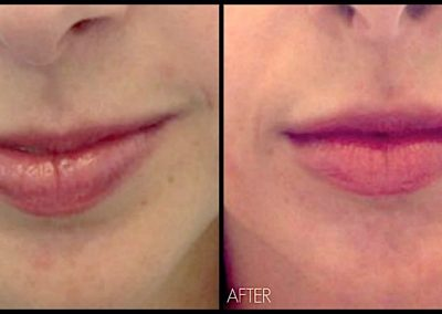 Plumping lips with Restylane Filler