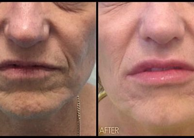 Improvement of lip shape, fullness as well as wrinkles around the mouth using Juvederm Ultra Plus Filler