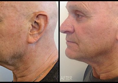 "Four months after Ultherapy treatment to full face and neck. Improvement of sagging skin along jawline and ""turkey neck."""