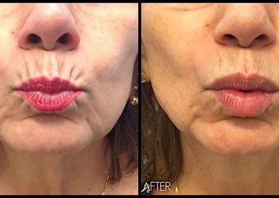 Improvement in softening of wrinkles around the mouth with Botox treatment.