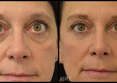 Improvement of hollowing under eyes after treatment with Restylane filler.