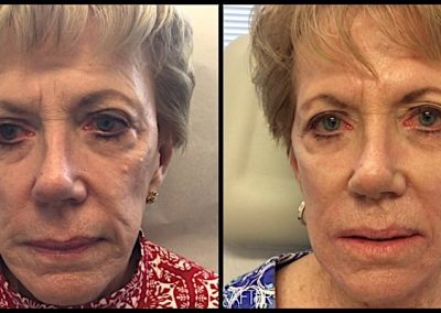 Improvement of mid-facial hollowing and wrinkles around the mouth with Restylane Lyft filler.