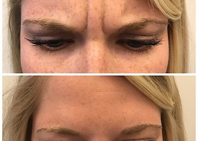 "Before and 5 days after Botulinum toxin treatment to the Glabella to improve ""squint lines/wrinkles"". The product Dysport was used here."