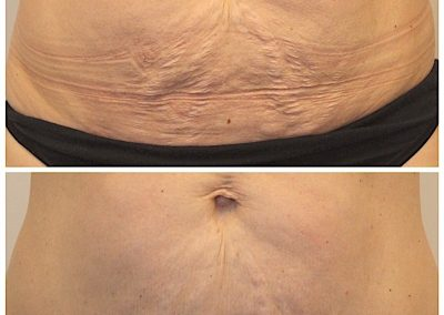 UltraShape Power and VelaShape: treating unwanted abdominal fat and tightening loose abdominal skin