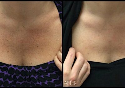 Improvement of freckles and discoloration at chest with Elos Plus SRA (IPL) treatment