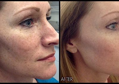 IPL laser treatment: Improving freckles and sun damage