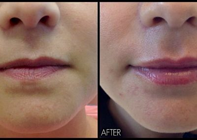 Improving Lip shape and volume with Belotero Filler