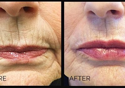Our 70 year old patient didn't like the lines around her mouth. Injection of Restylane to the actual lips as well as around the mouth helps soften the deep wrinkles around the mouth.