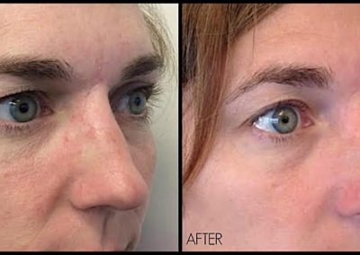 Notice lifting of eyebrow and improvement of upper eyelid heaviness after one treatment of Ultherapy.