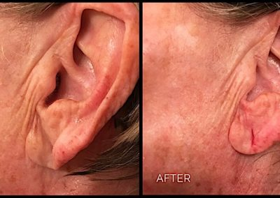Improvement of sagging earlobe and shape with Restylane Lyft Filler injection