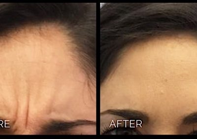Botox helps relax the scowl lines between the eyebrows.