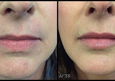 Plumping and volumizing lips with one syringe of Restylane Silk.