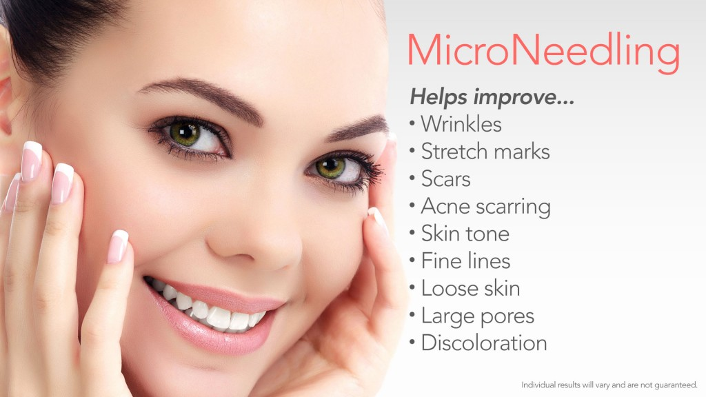 Microneedling at REN Dermatology