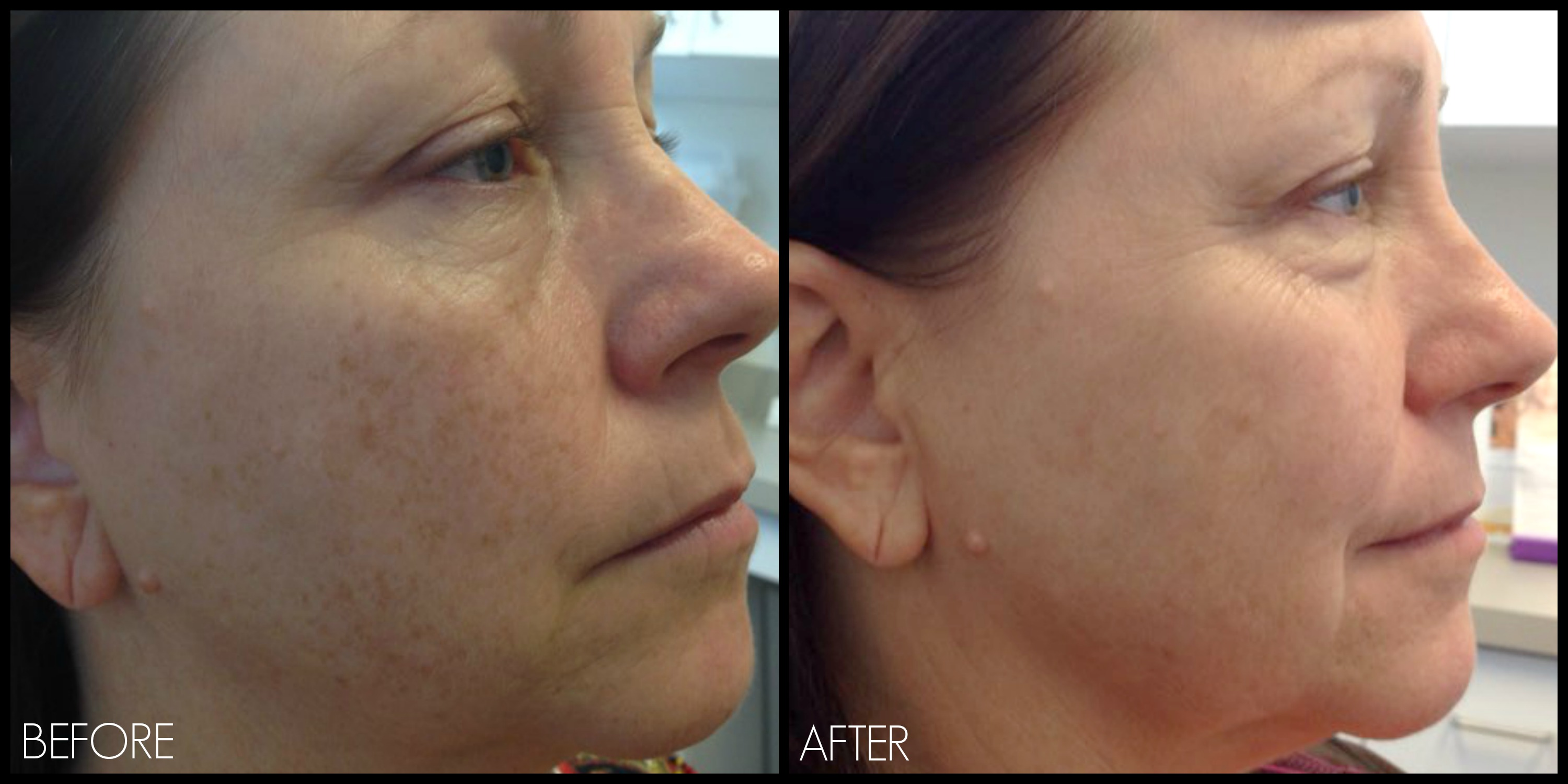 Laser Treatment (Before/After Photos) – REN Dermatology
