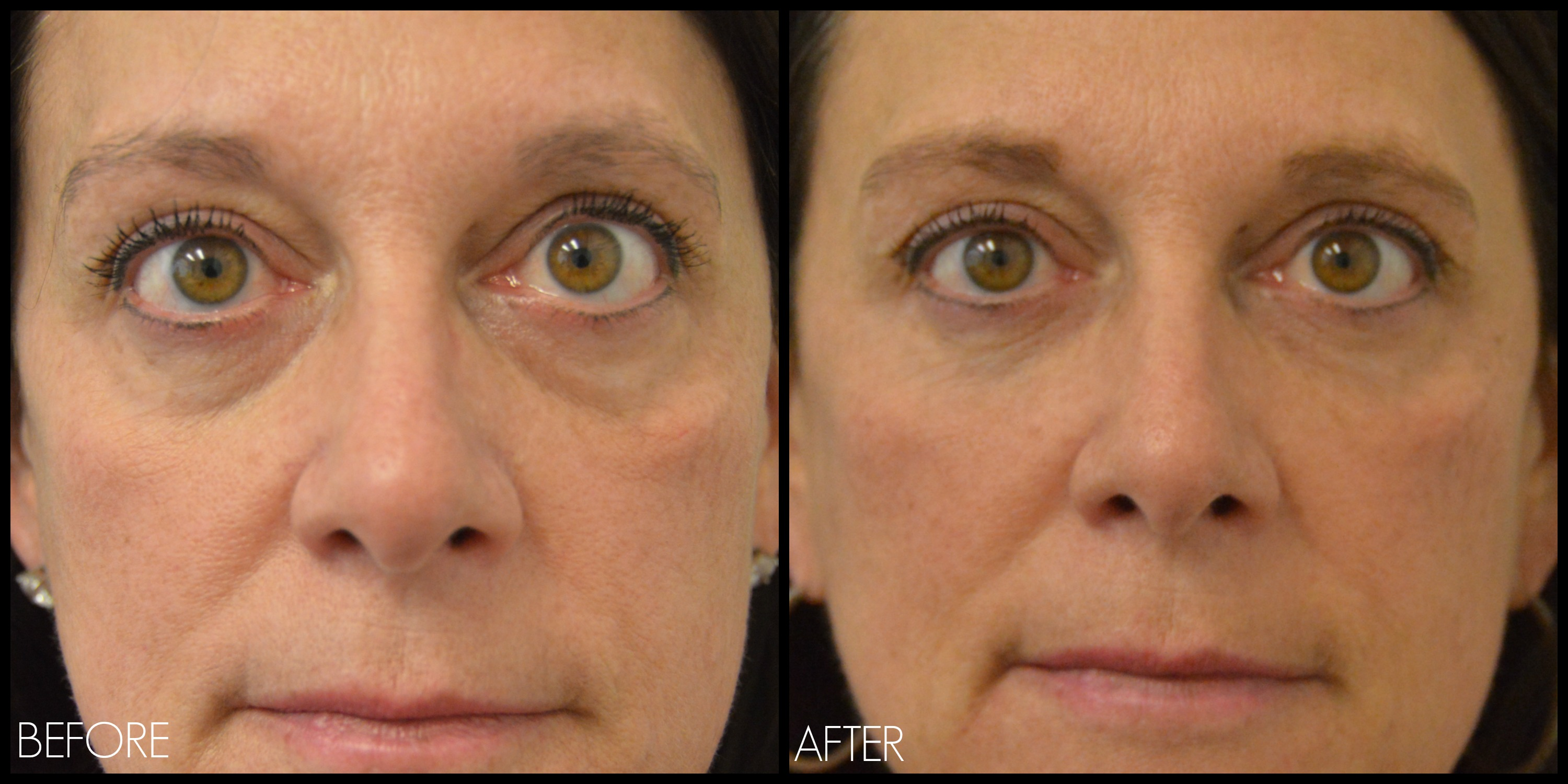 Images of Before And After Sociopath Eyes - #rock-cafe