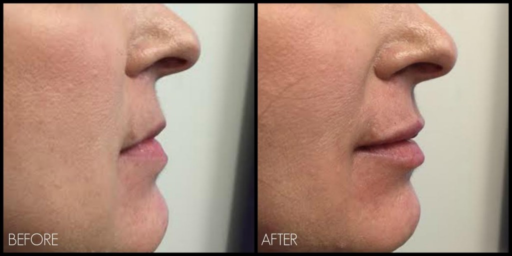 Note improvement of profile appearance with injection of Fillers to Lips. Restylane Silk used to achieve a subtle natural look.