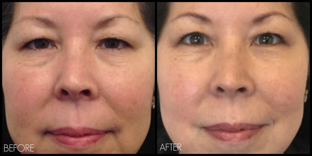 Ultherapy Eye Special: The Treatment You've Been Waiting For! – REN