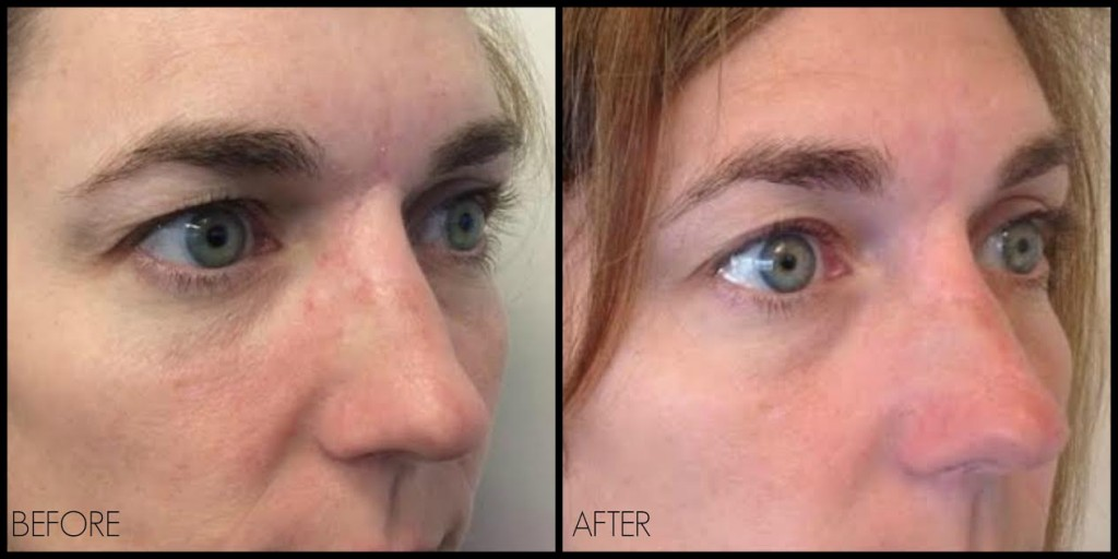 Ultherapy Eye Special The Treatment You Ve Been Waiting