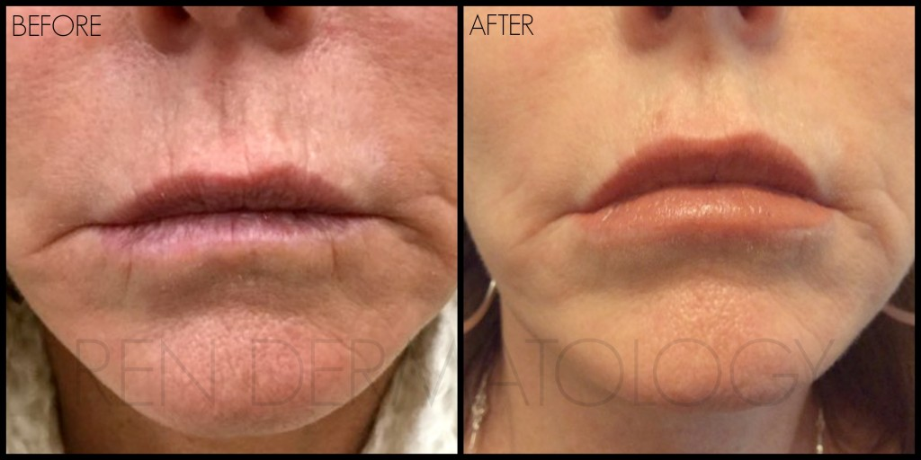 Are natural-looking lip injections possible? YES! • REN ...