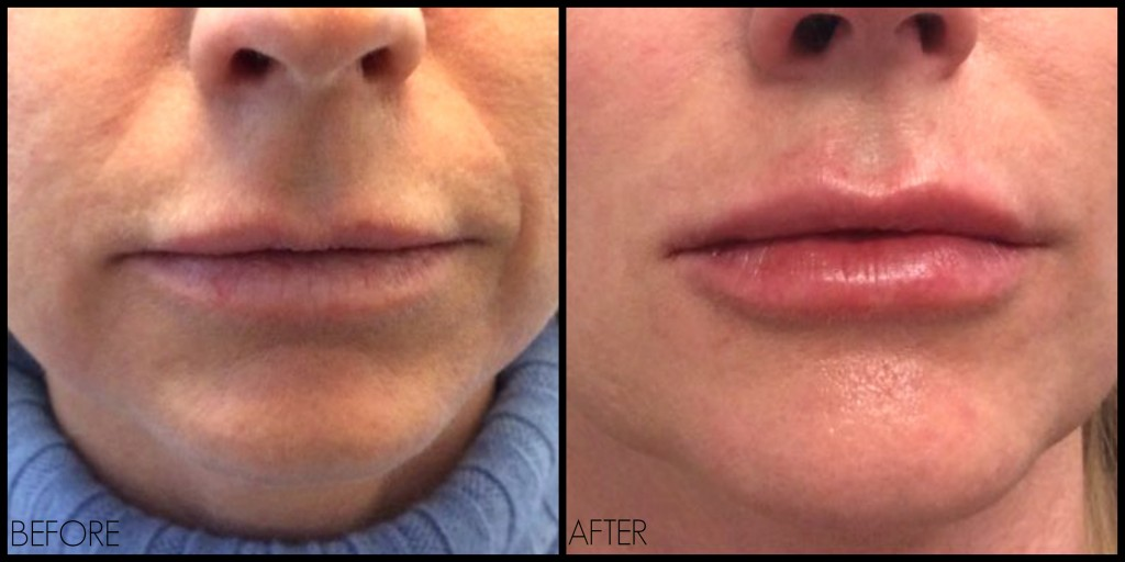 Are natural-looking lip injections possible? YES! – REN