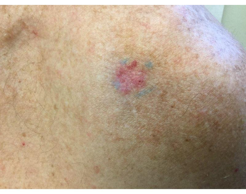 Skin Issues After Organ Transplant Surgery Ren Dermatology
